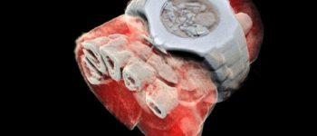 تهیه نخستین تصویرهای رنگی سه بعدی از بدن انسان